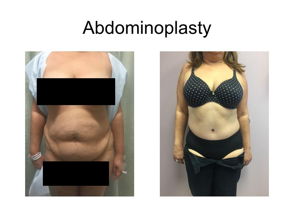 Abdominoplasty Khoury Plastic Surgery_AA
