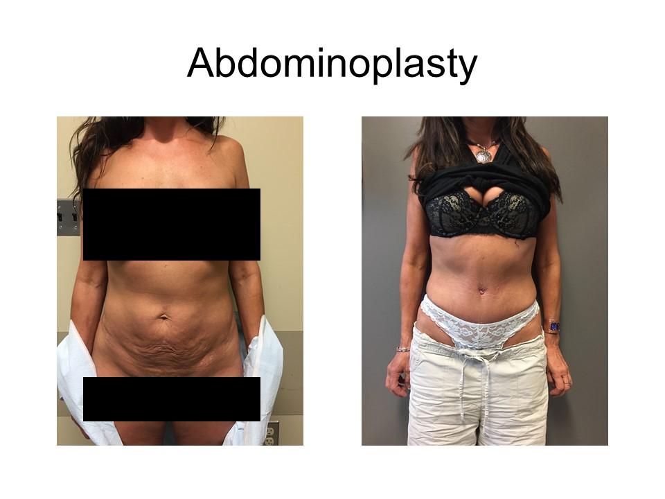 Abdominoplasty Khoury Plastic Surgery_IK