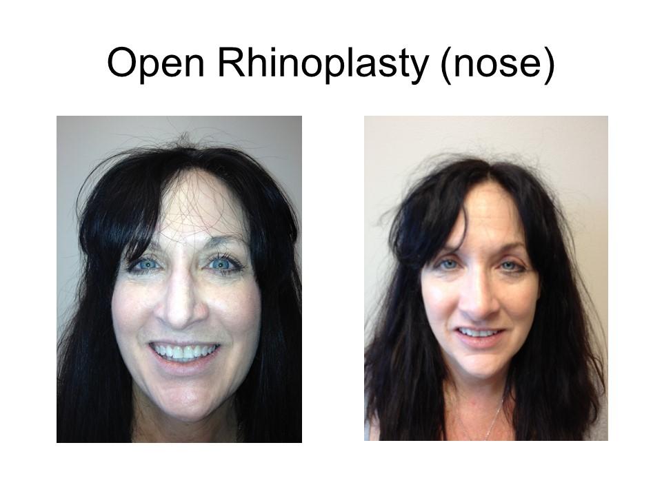 Rhinoplasty - Nose Job Khoury Plastic Surgery_KH